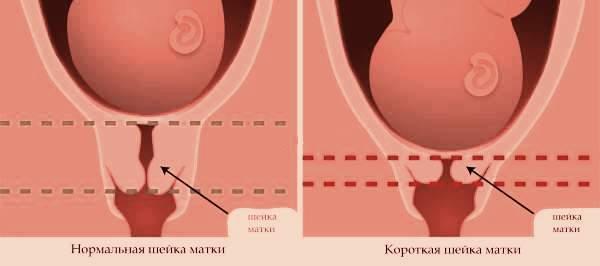 Беременность длина шейки матки 32 мм